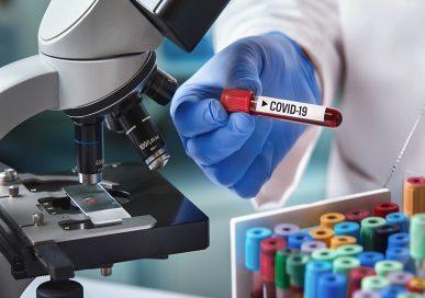 सरकारी खर्चमा निजी प्रयोगशालाले कोरोना परीक्षण गर्ने